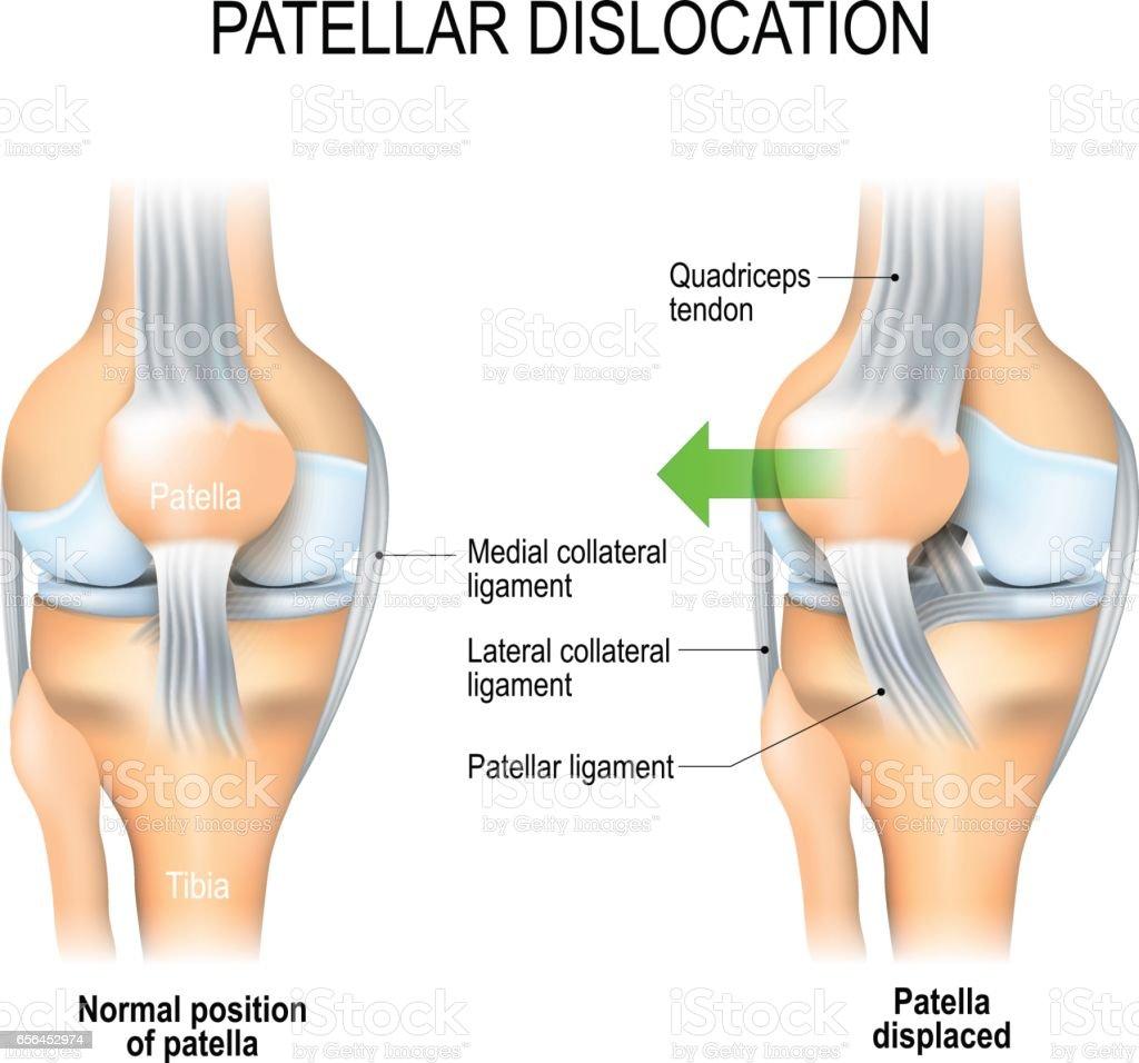 Patellar dislocation vector art illustration