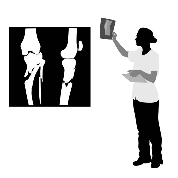 Patient Knee Xray vector art illustration