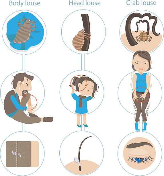 Royalty free human body lice clip art vector images illustrations pediculus humans vector art illustration ccuart Gallery