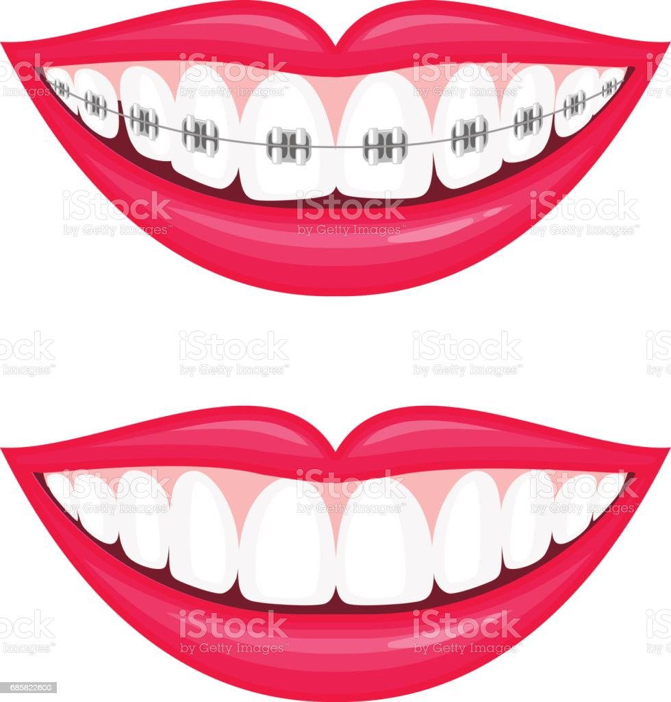 Perfect teeth before and after braces. vector art illustration