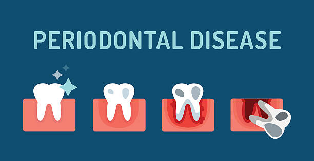 stockillustraties, clipart, cartoons en iconen met periodontal disease stage steps vector illustration - tandvleesontsteking