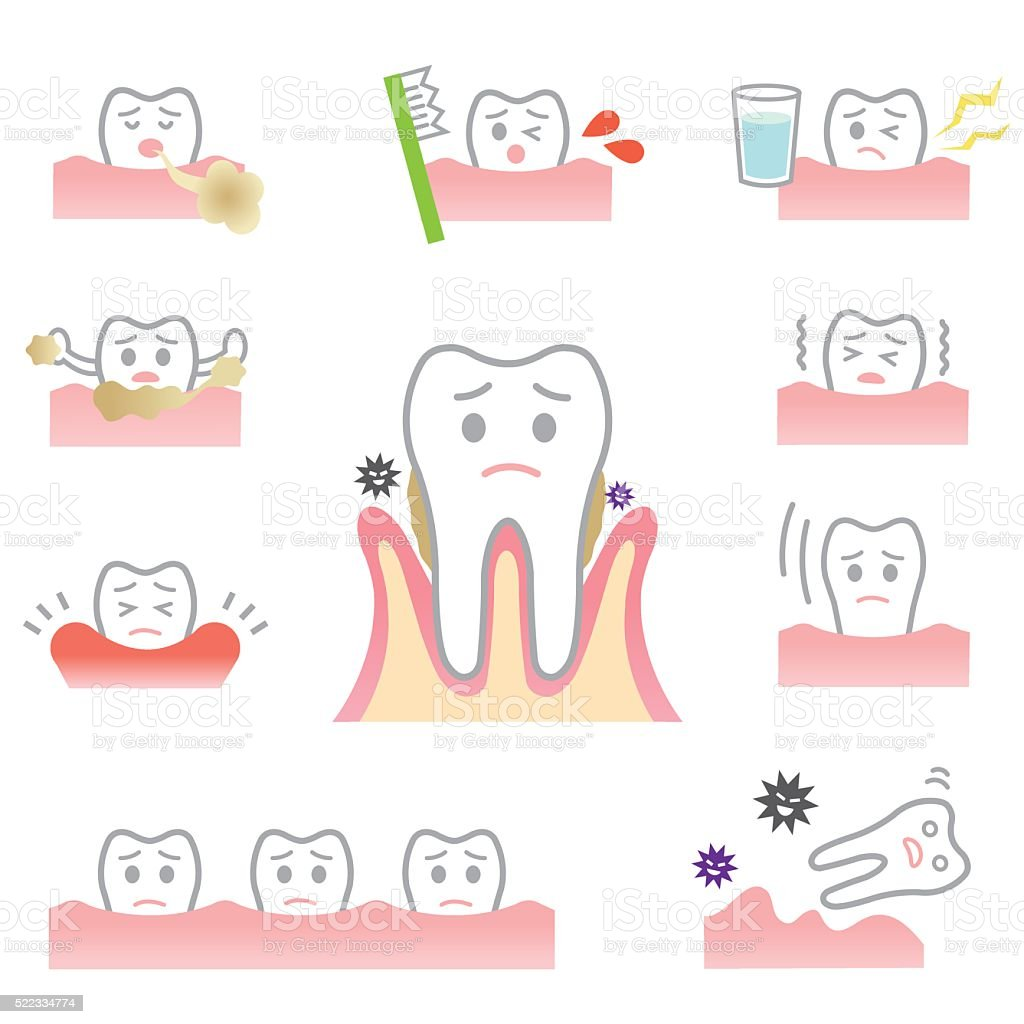 periodontal disease vector art illustration