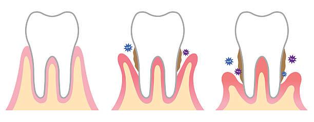 bildbanksillustrationer, clip art samt tecknat material och ikoner med periodontal disease - tandsten