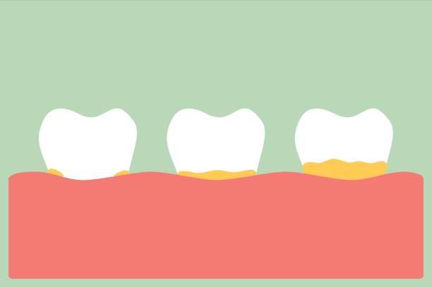 bildbanksillustrationer, clip art samt tecknat material och ikoner med tandlossning plack och tandsten - tandsten