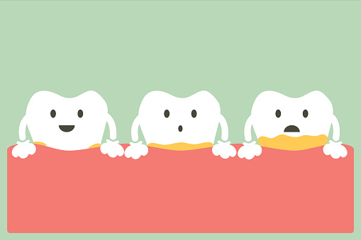 periodontal disease with plaque or tartar