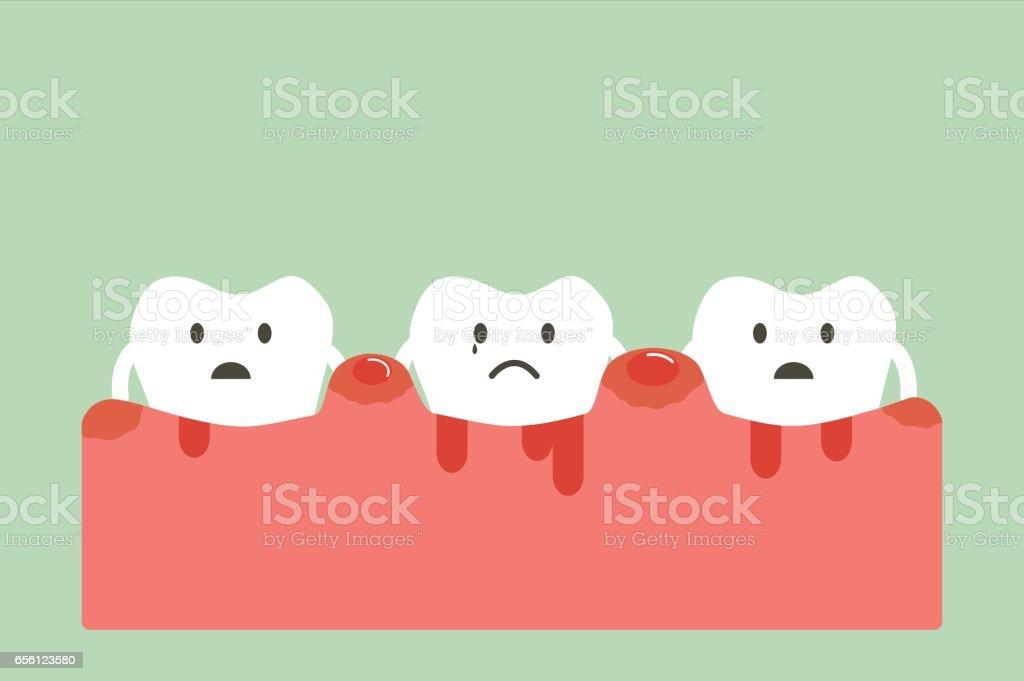periodontitis and bleeding vector art illustration