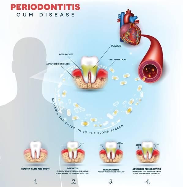 stockillustraties, clipart, cartoons en iconen met parodontitis tandvleesontsteking veroorzaken hartproblemen - tandvleesontsteking