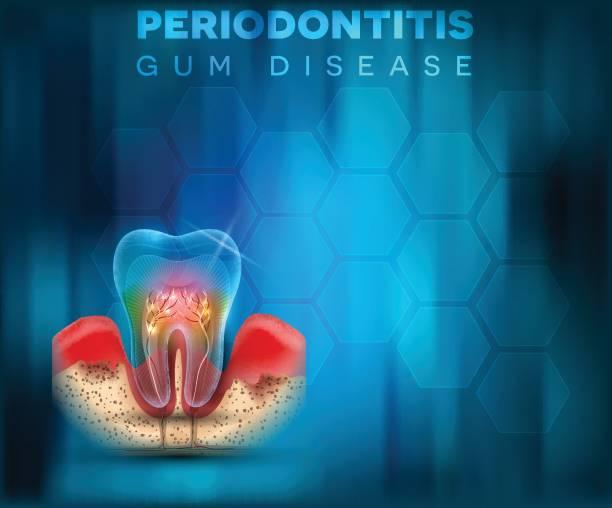 stockillustraties, clipart, cartoons en iconen met parodontitis gom ziekte poster - tandvleesontsteking
