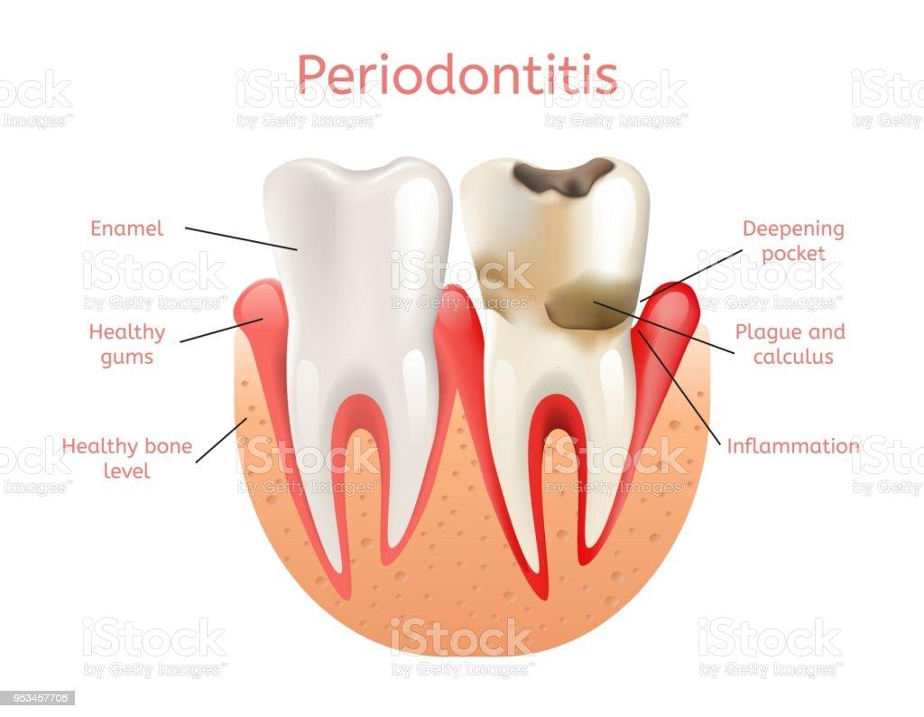 Parodontitis Entzündung Des Zahnfleisch 3d Realistisch Stock Vektor ...