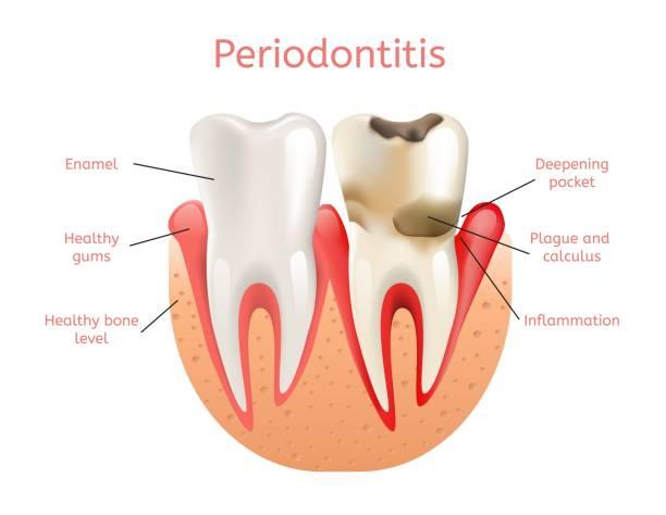 stockillustraties, clipart, cartoons en iconen met parodontitis, ontsteking van tandvlees 3d realistisch - tandvleesontsteking