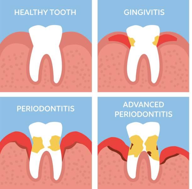 stockillustraties, clipart, cartoons en iconen met parodontitis - tandvleesontsteking