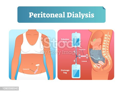istock Peritoneal dialysis vector illustration. Labeled method to exchange fluids. 1090599340