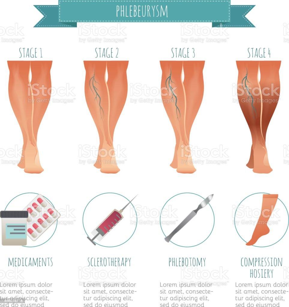 Phlebologie Infografik Behandlung Von Krampfadern Vektorillustration ...
