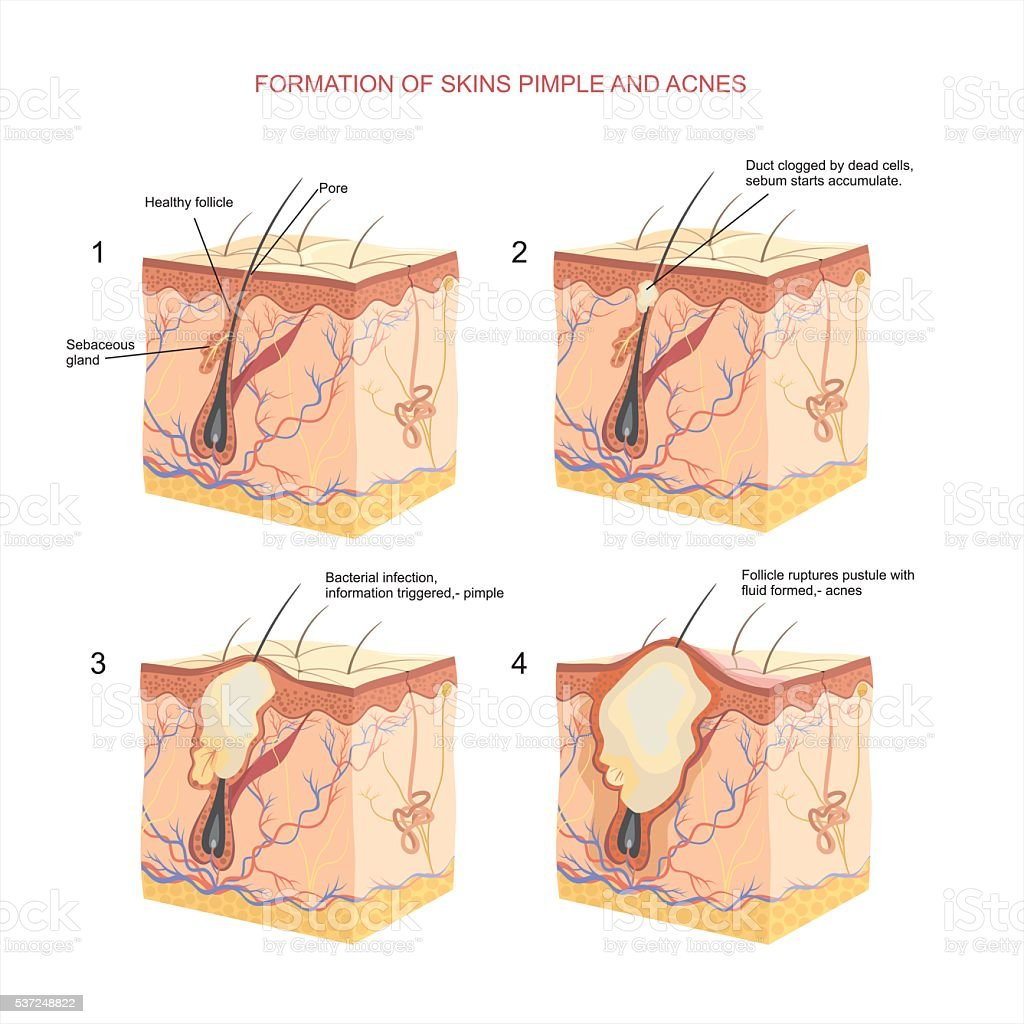 Pimple And Acnes Stock Vector Art & More Images of Anatomy 537248822 ...