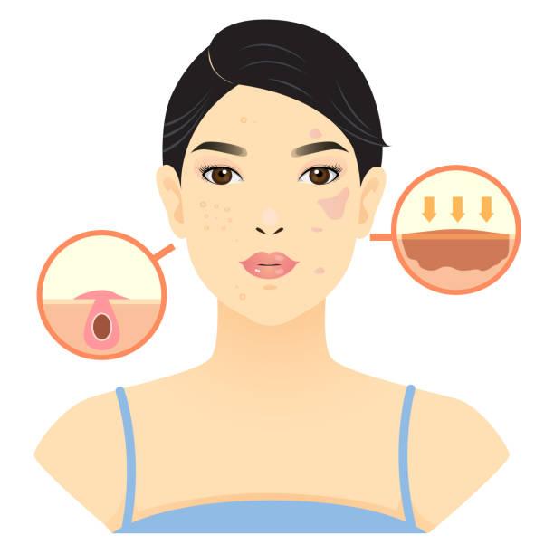 hyperpigmentation types