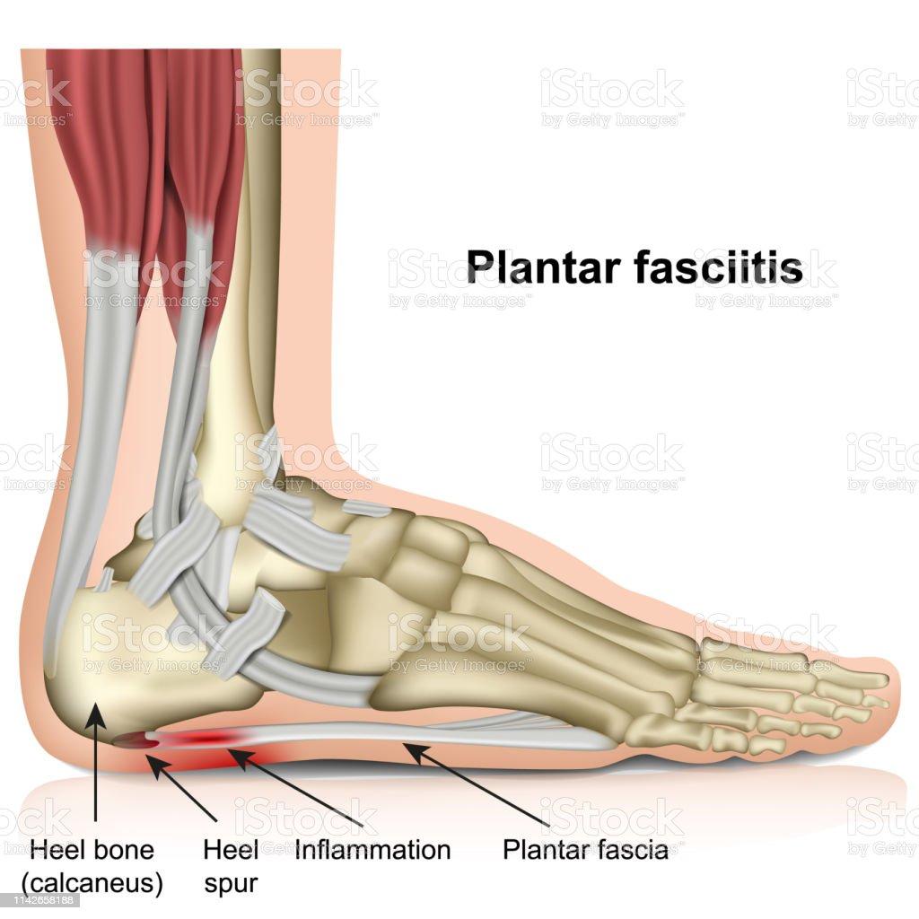 Резултат с изображение за Plantar Fasciitis 3d