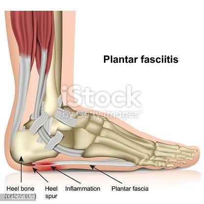 istock plantar fasciitis 3d medical vector illustration on white background 1142658188