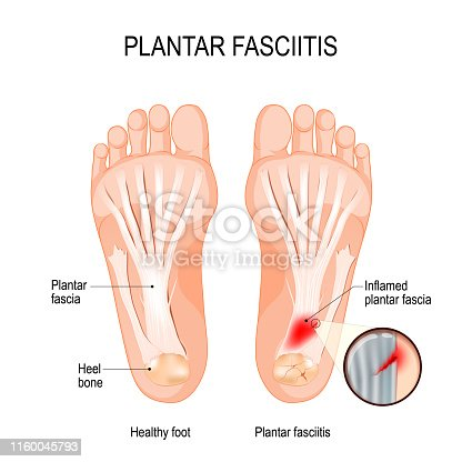 istock Plantar fasciitis. disorder of the connective tissue which supports the arch of the foot 1160045793