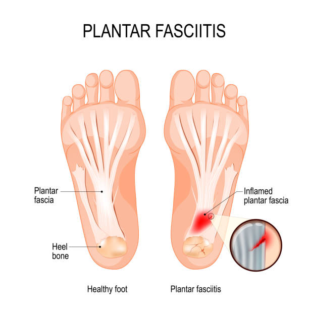 Plantar fasciitis. disorder of the connective tissue which supports the arch of the foot vector art illustration