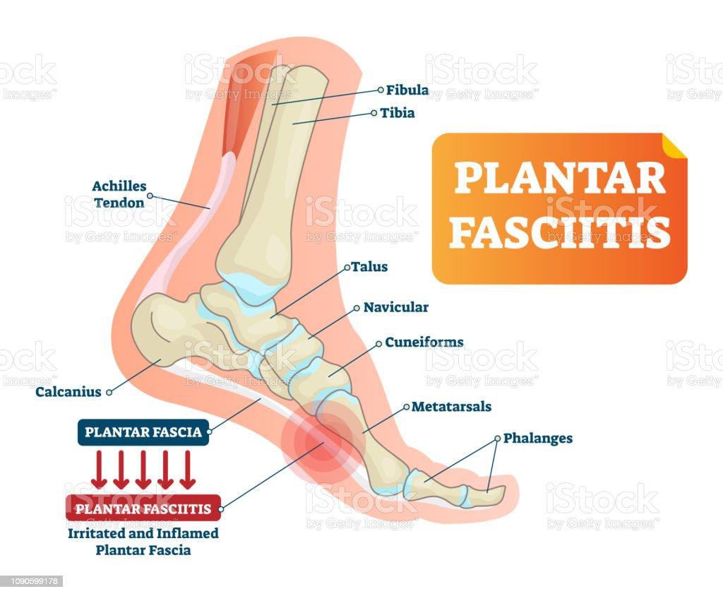 plantar fasciitis vector illustration labeled human feet disorder Prosthetic Foot Diagram plantar fasciitis vector illustration labeled human feet disorder diagram illustration