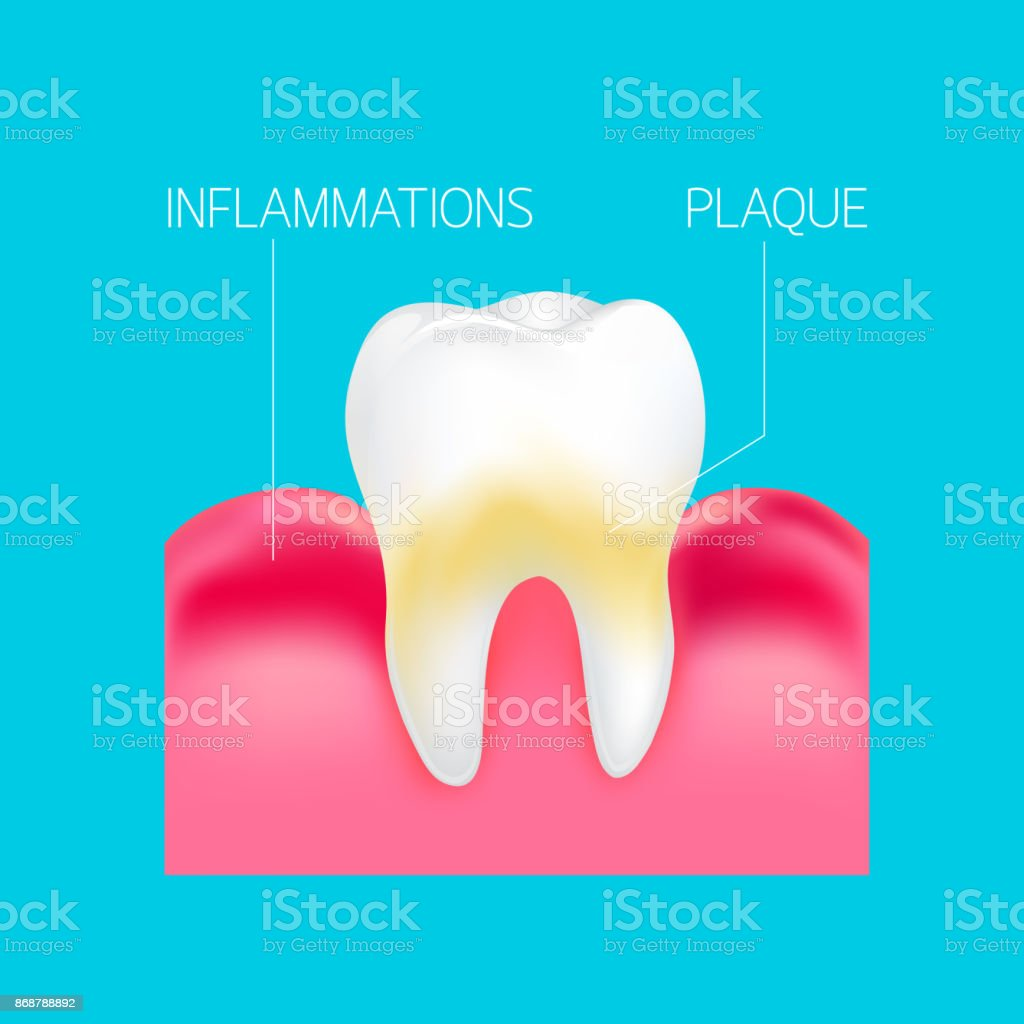 Plaque And Inflammation Gum On Human Tooth Infographic Stock Vector