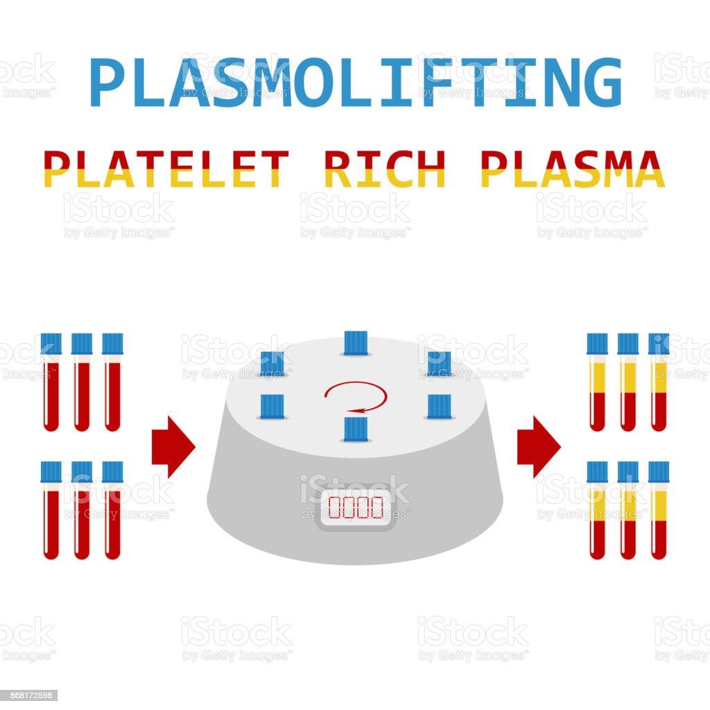 Plasmolifting. Platelet rich plasma. PRP method. Vector. vector art illustration