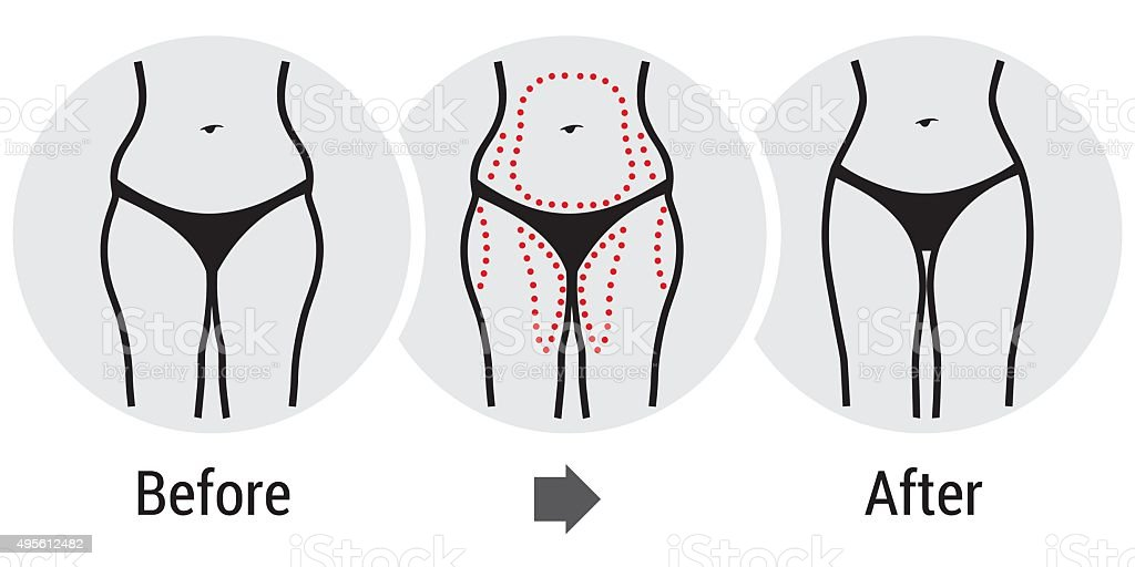 plastic surgery hips vector art illustration