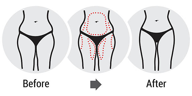 chirurgia plastyczna biodrach - ludzka noga stock illustrations