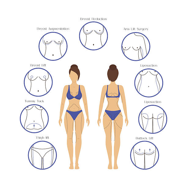 plastic surgery woman body infographics. vector - talia tułów stock illustrations