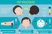 Platelet rich plasma procedure