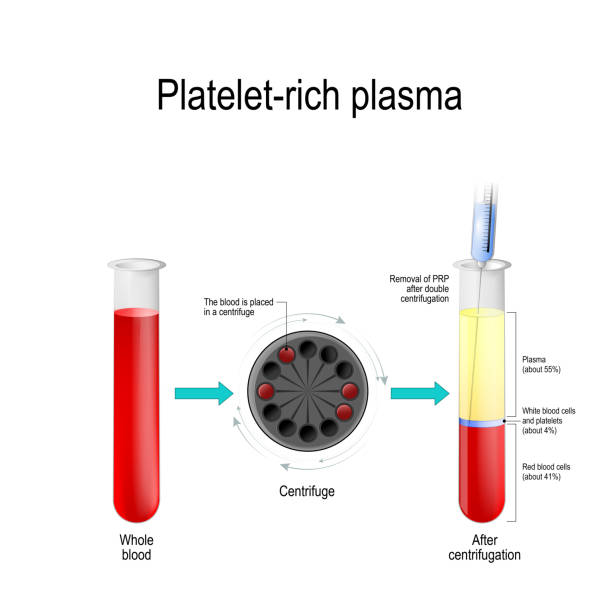 Platelet-rich plasma.  blood test tube, centrifuge, syringe, and test tube with layers of blood components Platelet-rich plasma. Autologous conditioned plasma, is a concentrate of platelet-rich plasma derived from whole blood, centrifuged to remove red blood cells. blood test tube, centrifuge, syringe, and test tube with layers of blood components platelet stock illustrations