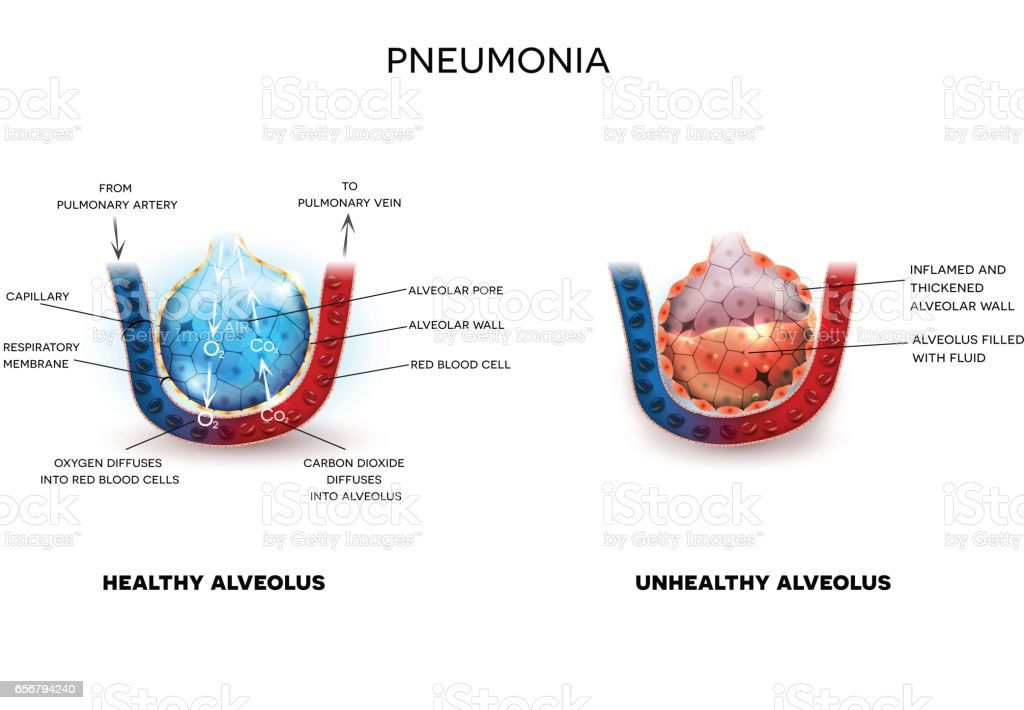 Pneumonia And Healthy Alveoli Stock Vector Art More Images Of