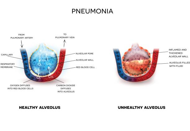 Pneumonia and healthy alveoli Pneumonia illustration, alveoli with fluid and healthy Alveoli, oxygen and carbon dioxide exchange between alveoli and capillaries. alveolus stock illustrations