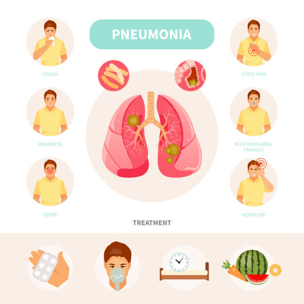 Pneumonia infographic vector Male character with the symptoms and treatment of pneumonia. Vector medical infographics, poster alveolus stock illustrations