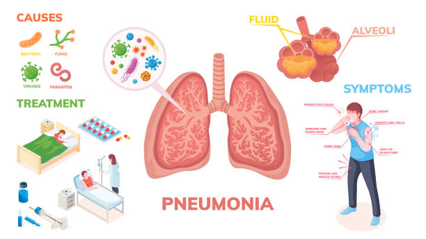 Pneumonia lungs disease vector infographics on symptoms, cause and medical treatment. Pneumonia lungs infection bacteria and viruses, disease symptoms, transmission prevention and hospitalization Pneumonia lungs disease vector infographics on symptoms, cause and medical treatment. Pneumonia lungs infection bacteria and viruses, disease symptoms, transmission prevention and hospitalization alveolus stock illustrations