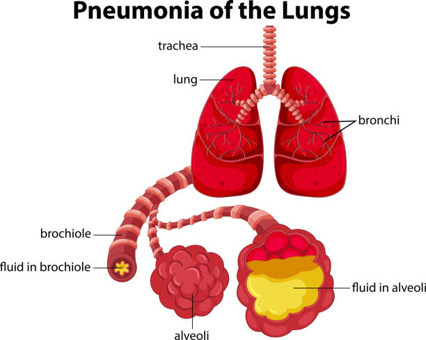 Pneumonia of the Lungs diagram Pneumonia of the Lungs diagram illustration alveolus stock illustrations