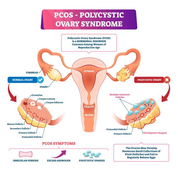 ilustraciones, imágenes clip art, dibujos animados e iconos de stock de ilustración vectorial del síndrome de ovario poliquístico. enfermedad reproductiva etiquetada - ovario