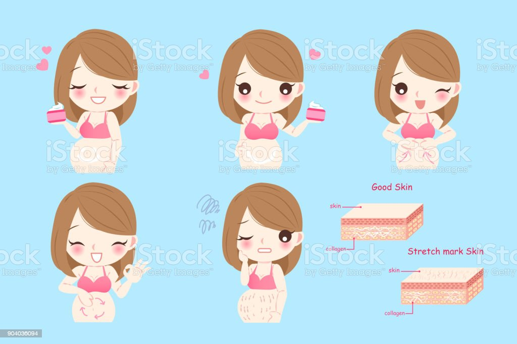 pregnant woman with stretch marks vector art illustration
