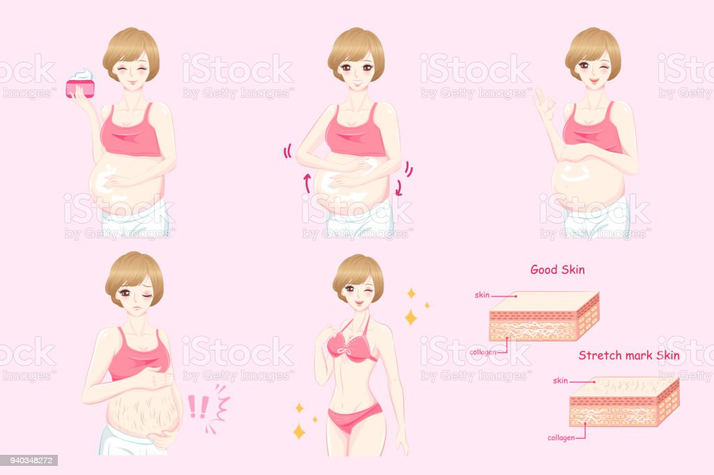 pregnant women with stretch marks vector art illustration