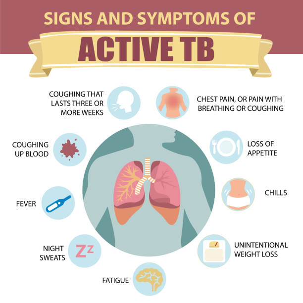 Print Signs and symptoms of pulmonary tuberculosis.  Active TB. Detailed vector Infographic. Human health. alveolar duct stock illustrations