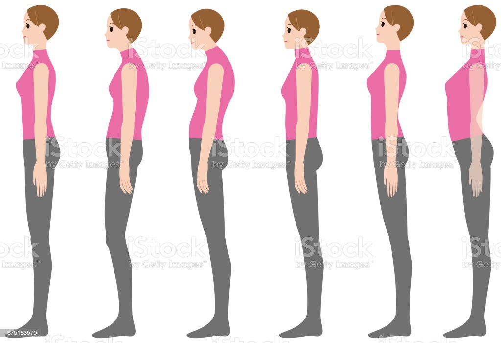 PrintCorrect posture and bad posture vector art illustration