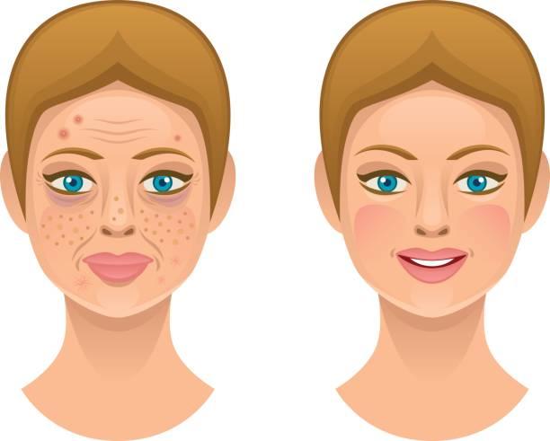 illustrations, cliparts, dessins animés et icônes de problèmes de peau - femme tache de rousseur
