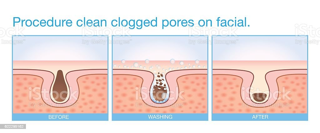 Procedure clean clogged pores on facial. vector art illustration