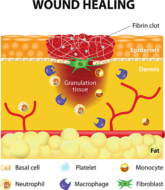 the process and factors of wound healing Each of the treatment modalities described in these articles is designed to realign the biochemical signaling pathways of wound healing toward a more normal wound environment leading to progression and resolution.