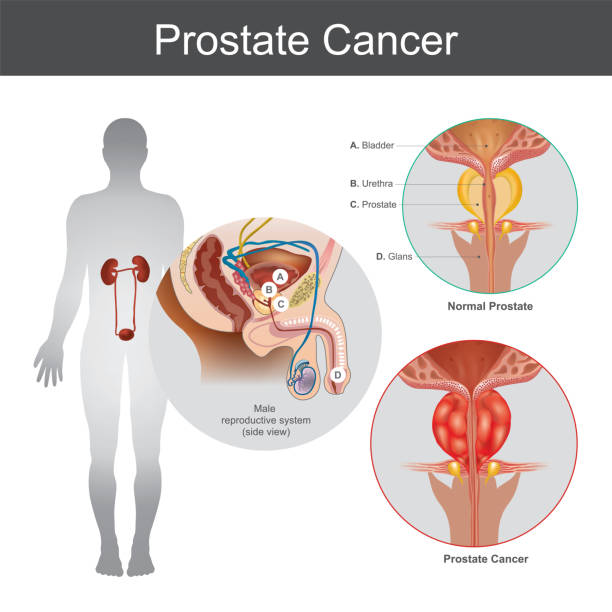 Royalty Free Prostate Clip Art, Vector Images & Illustrations - iStock