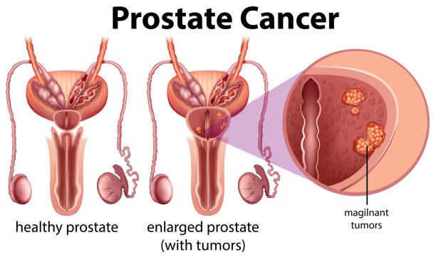 stockillustraties, clipart, cartoons en iconen met prostaatkanker op witte achtergrond - prostaatkanker
