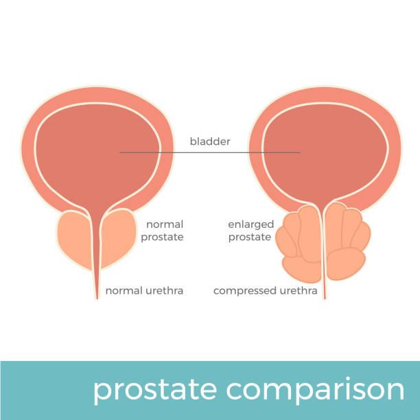 bildbanksillustrationer, clip art samt tecknat material och ikoner med prostata jämförelse - prostatakörtel