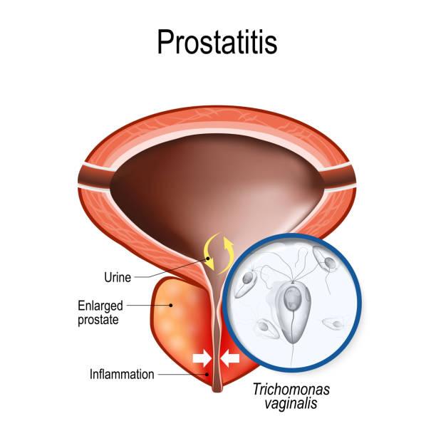 Prostatis milyen következményekkel jár Népi módszerek véleménye a prosztatitis kezelésére