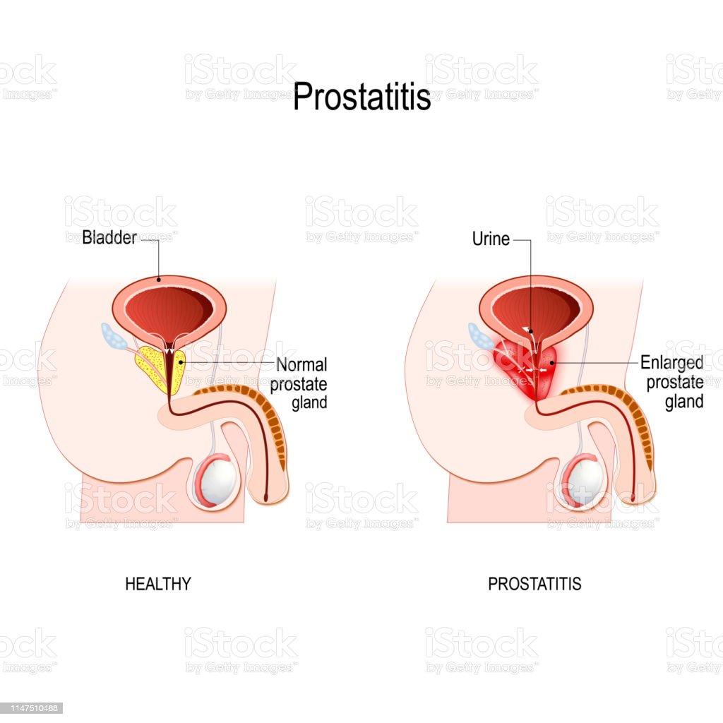 próstata normal pero con prostatitis