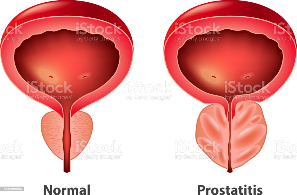 Prostatitis Normal Und Entzündete Prostata Isoliert Vektor Stock ...